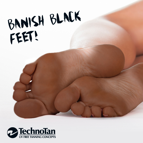 Banish Black Feet_Blog Post_July 2015
